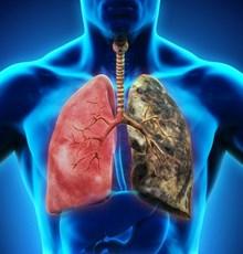 4 گیاه شگفت انگیز برای سلامت ریه