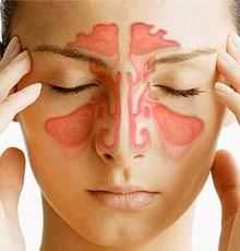 5 راهکار گیاهی برای درمان سینوزیت