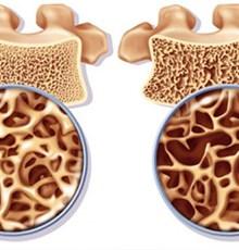 قوی ترین درمان گیاهی پوکی استخوان چیست؟